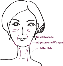 Zonen Facelift in München, Dr. Barbara Kernt